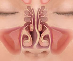 Functional Endoscopic Sinusitis Surgery